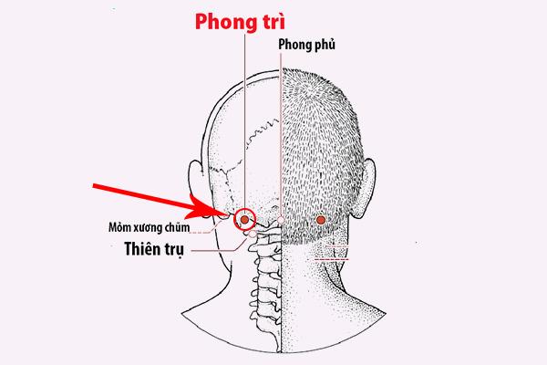 Phương pháp bấm huyệt Phong Trì điều trị ho kèm theo viêm họng