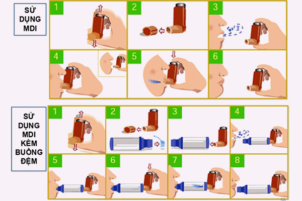 Hướng dẫn sử dụng MDI và MDI kèm buồng đệm
