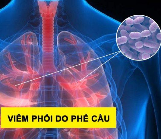 Viêm phổi do phế cầu